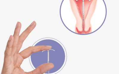 DIU Hormonal de Baixa Dose